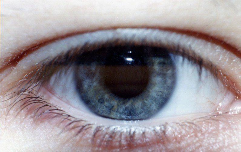 Мониторы для плохого зрения
