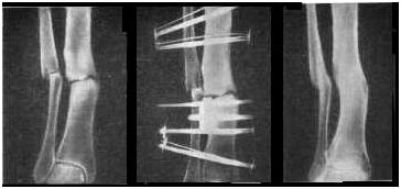 склероз суставов костей пяток