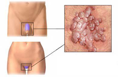 Венерические болезни оральном сексе