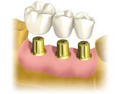 Осложнения после протезирования зубов