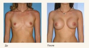 увеличение груди народная медицина
