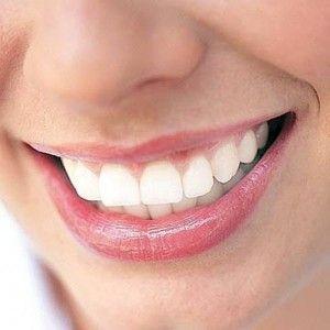 капы для отбеливания зубов где купить