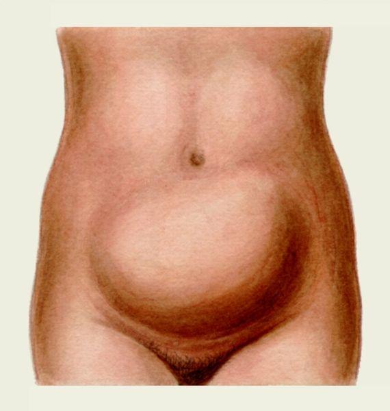 Стеноз выходного отдела желудка фото