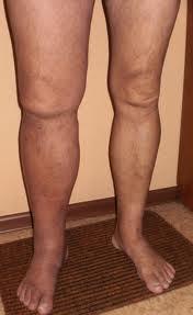 Вены на ногах лечение варикоз зуд