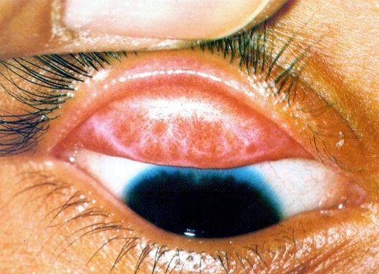 Поражение глаз и суставов при хламидиозе - синдром рейтера при хламидиозе: клиника, диагностика и лечение