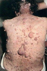 Факоматозы