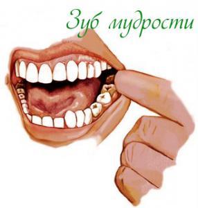 Болезни зубов мудрости