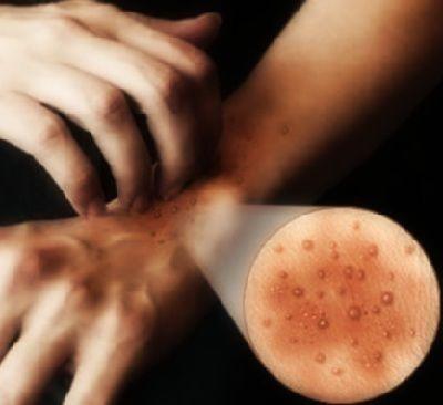Полип эндометрия и лечение народными средствами