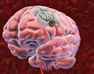 Лечение рака головного мозга.