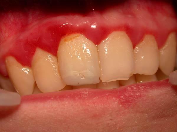 отбеливание зубов в нижнем новгороде