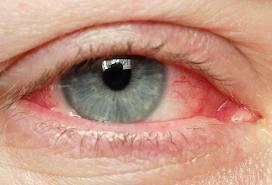 аллергия на плесень перекрестная с чем