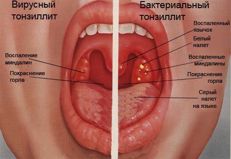 Тонзиллит причины и симптомы