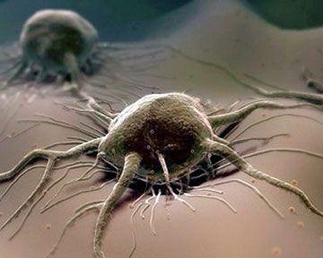 Последствия добычи никеля - раковые  онеологические заболевания заболевания -воронеж