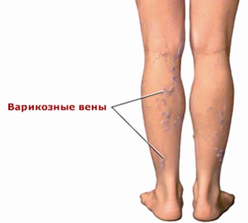 лечение варикозного расширения вен в Алматы