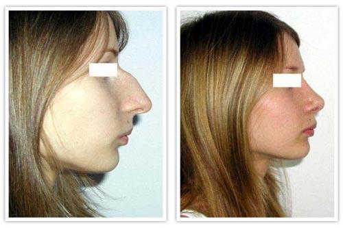 Ринопластика носа сургут цена