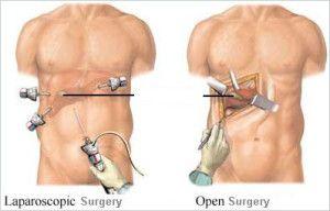 laparoscopys