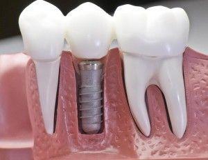 bigstock_Capped_Dental_Implant_Model_6941096