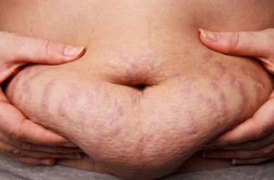 Belly Fat Stretch Mark