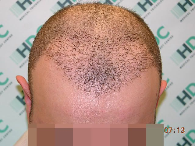 Маска для волос гвоздика и льняное масло