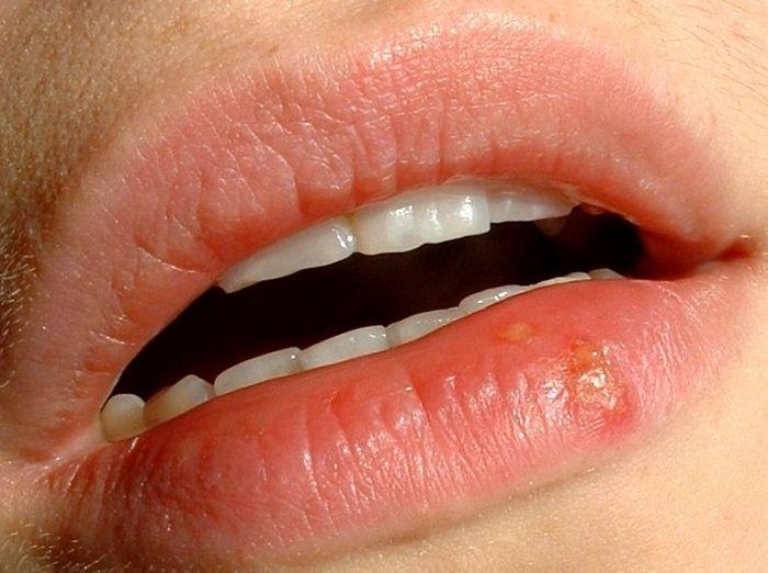 Почему на губах часто появляется герпес на
