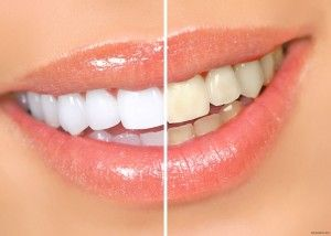 1365667755_otbelivanie-zubov3