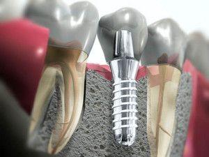 implantaciya-zubov-za-i-protiv