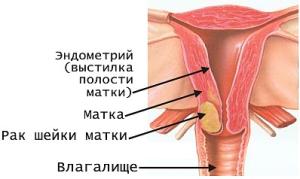 sheyka_matki