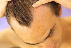 андрогенетическая алопеция у мужчин