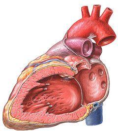 endokardit2