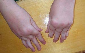 yuvenilnyy-artrit
