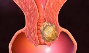 эмбриональная карцинома
