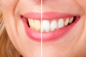 Причины потемнения зубов
